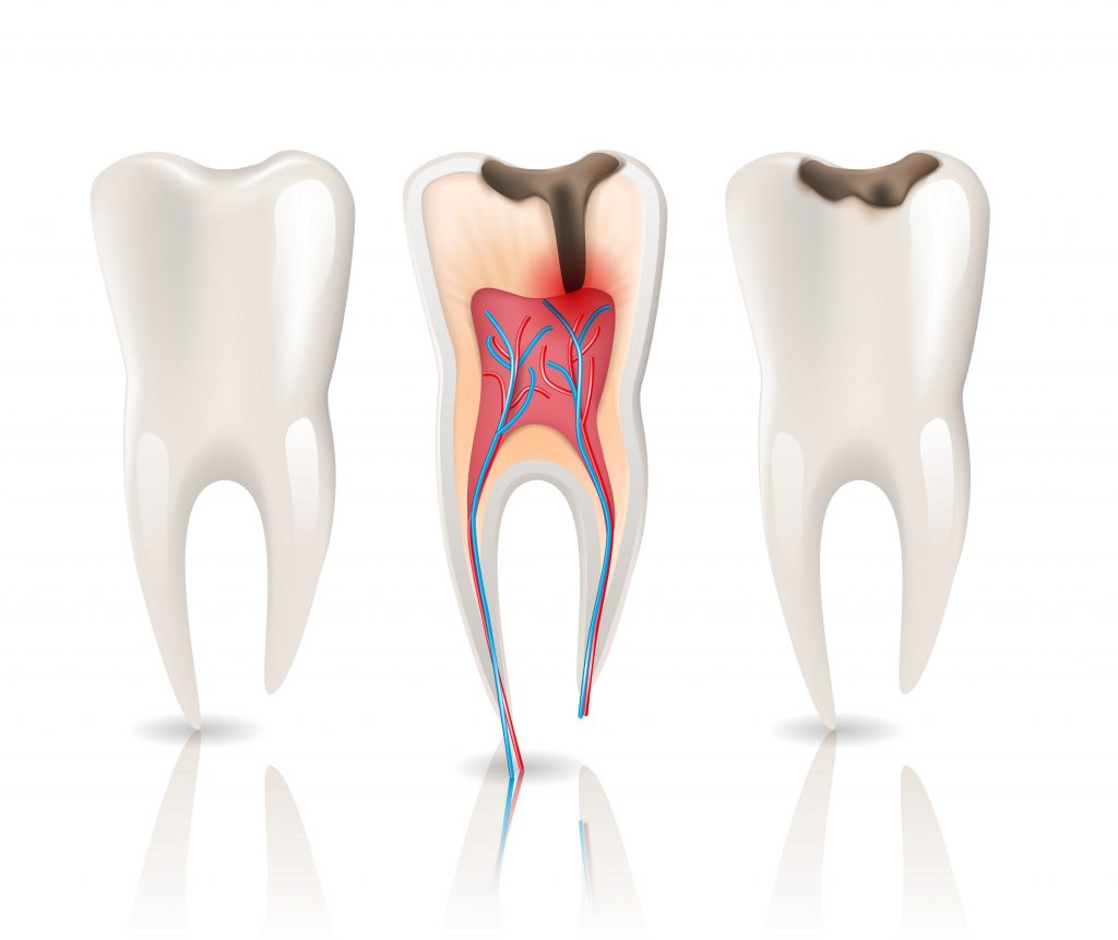 Caries infection causing tooth sensitivity