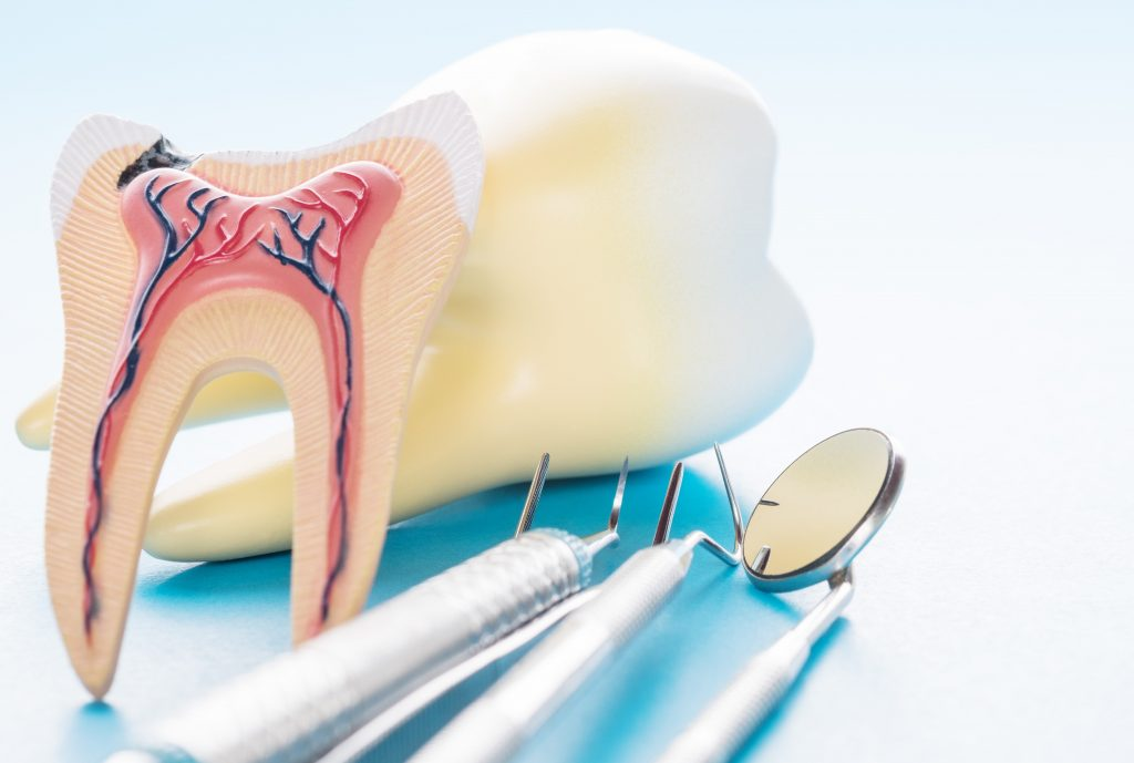 Root Canal Treatment for infected tooth pulp